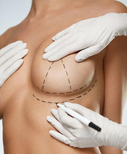 намаляване на бюста