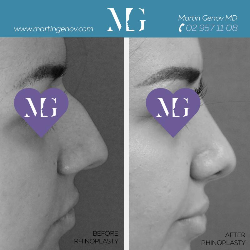 операция на нос