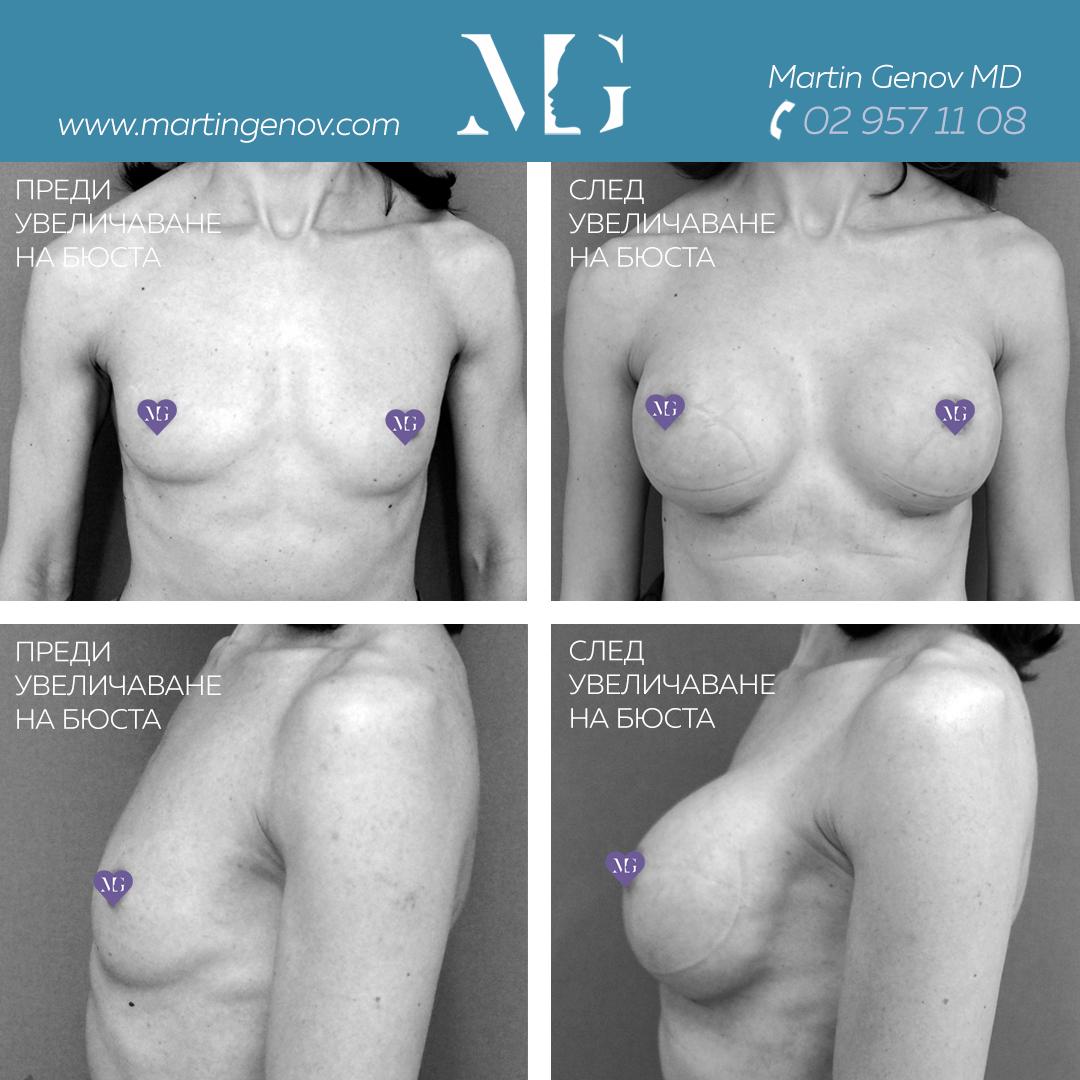 уголемяване на гърди