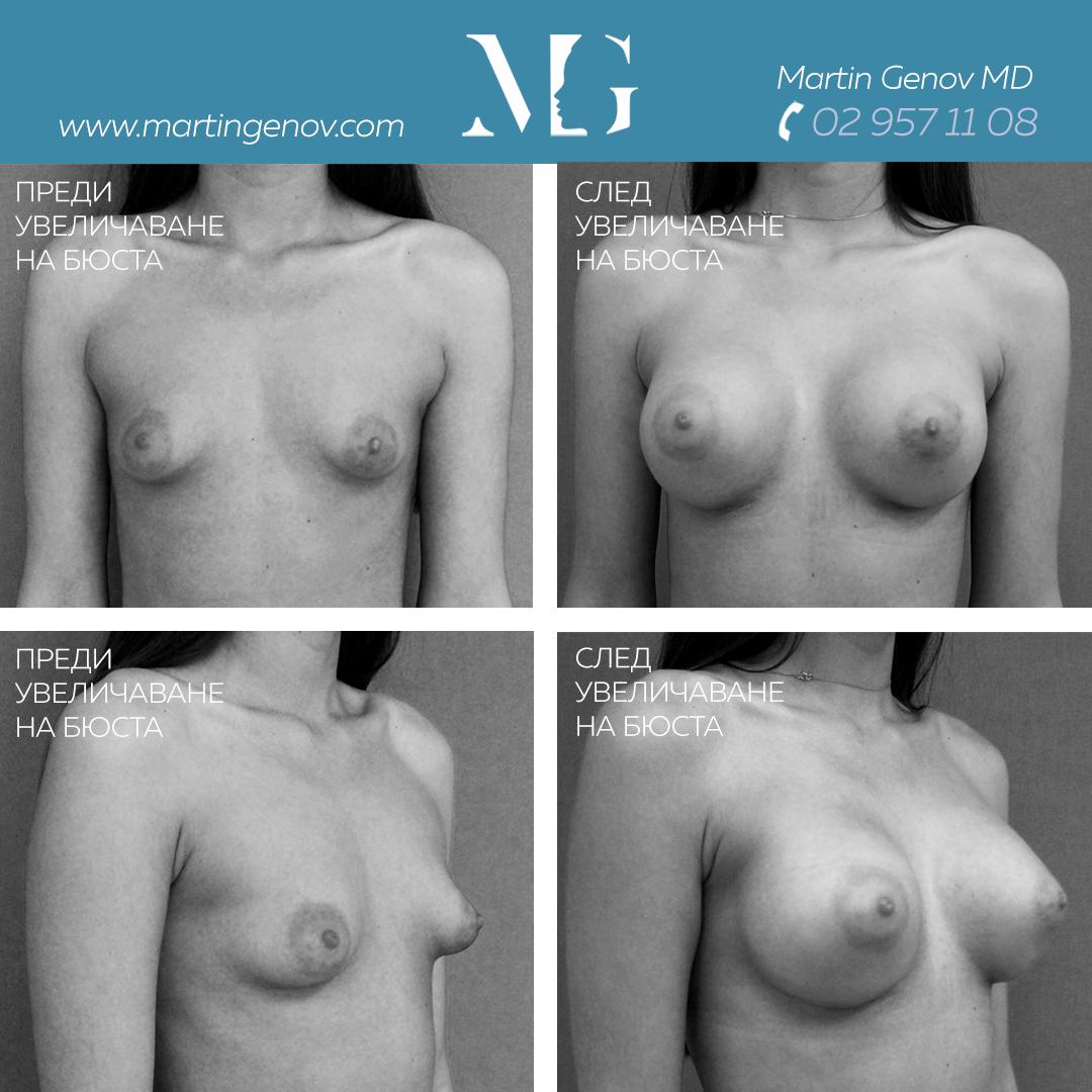 тубуларни гърди