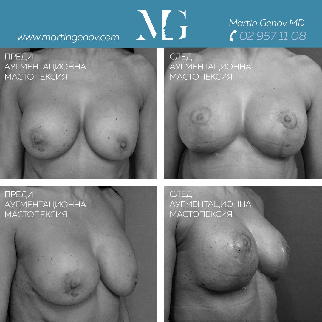 аугментационна мастопексия