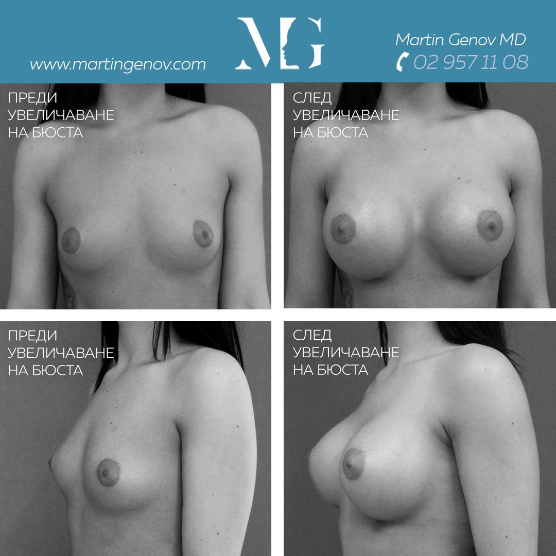 уголемяване на бюста