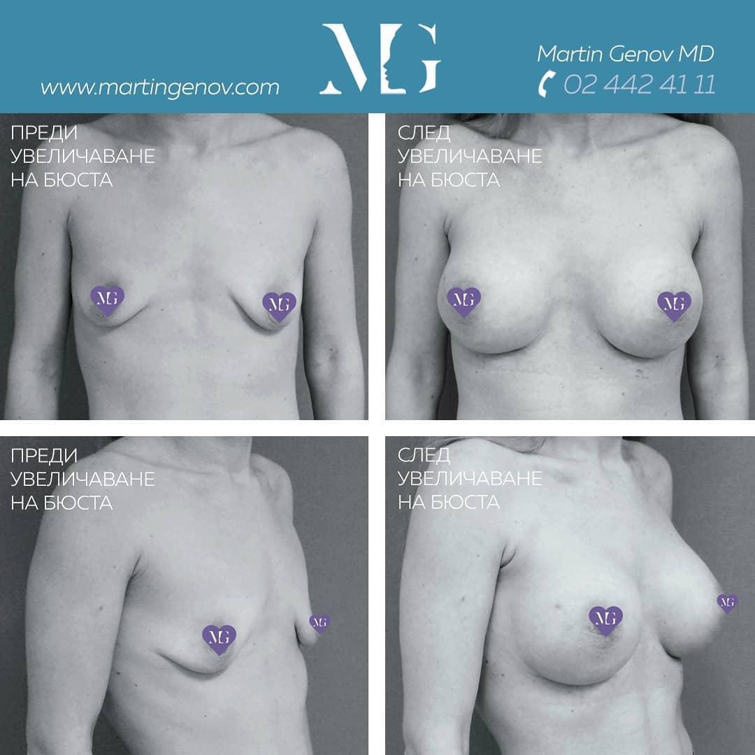 туберозни гърди