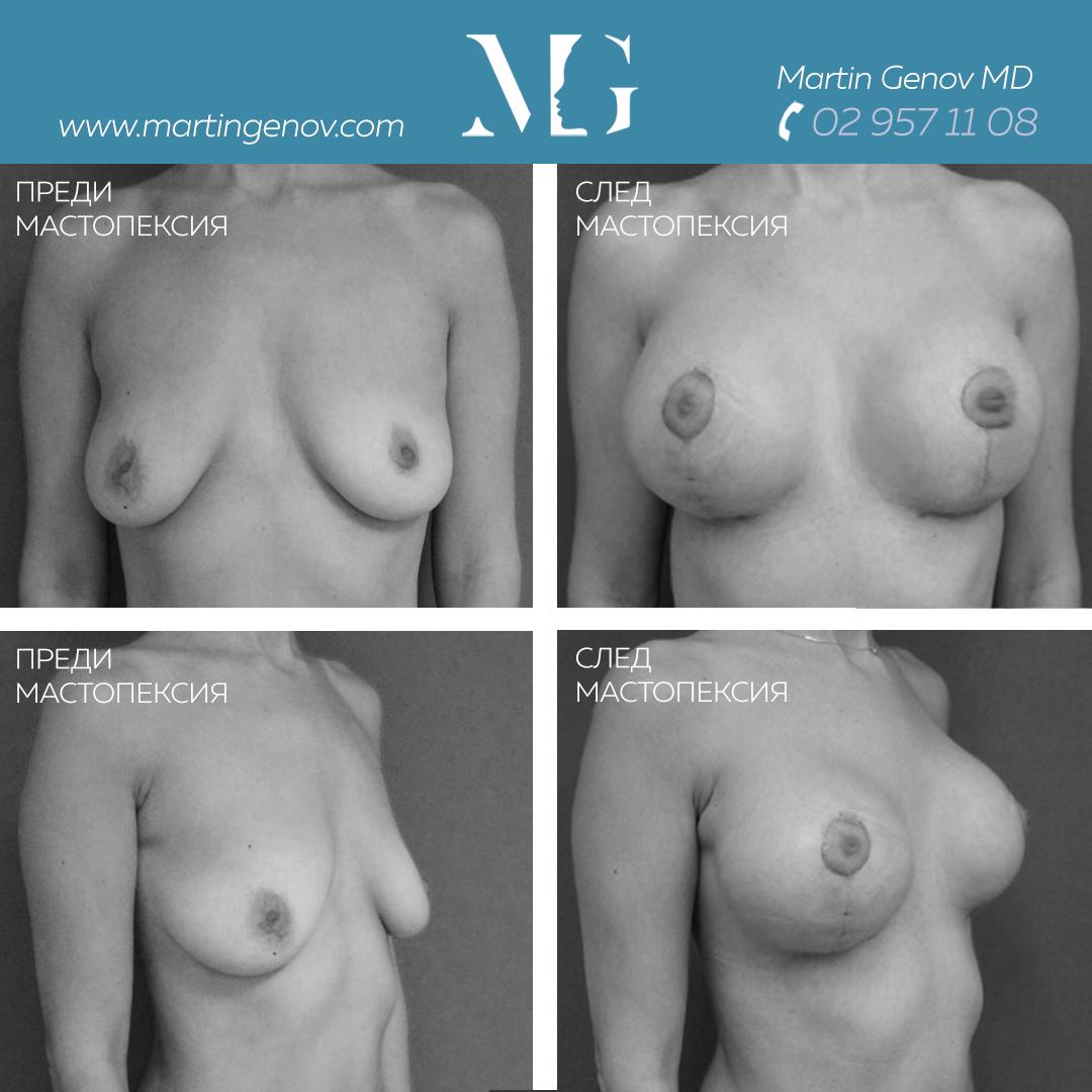 мастопексия