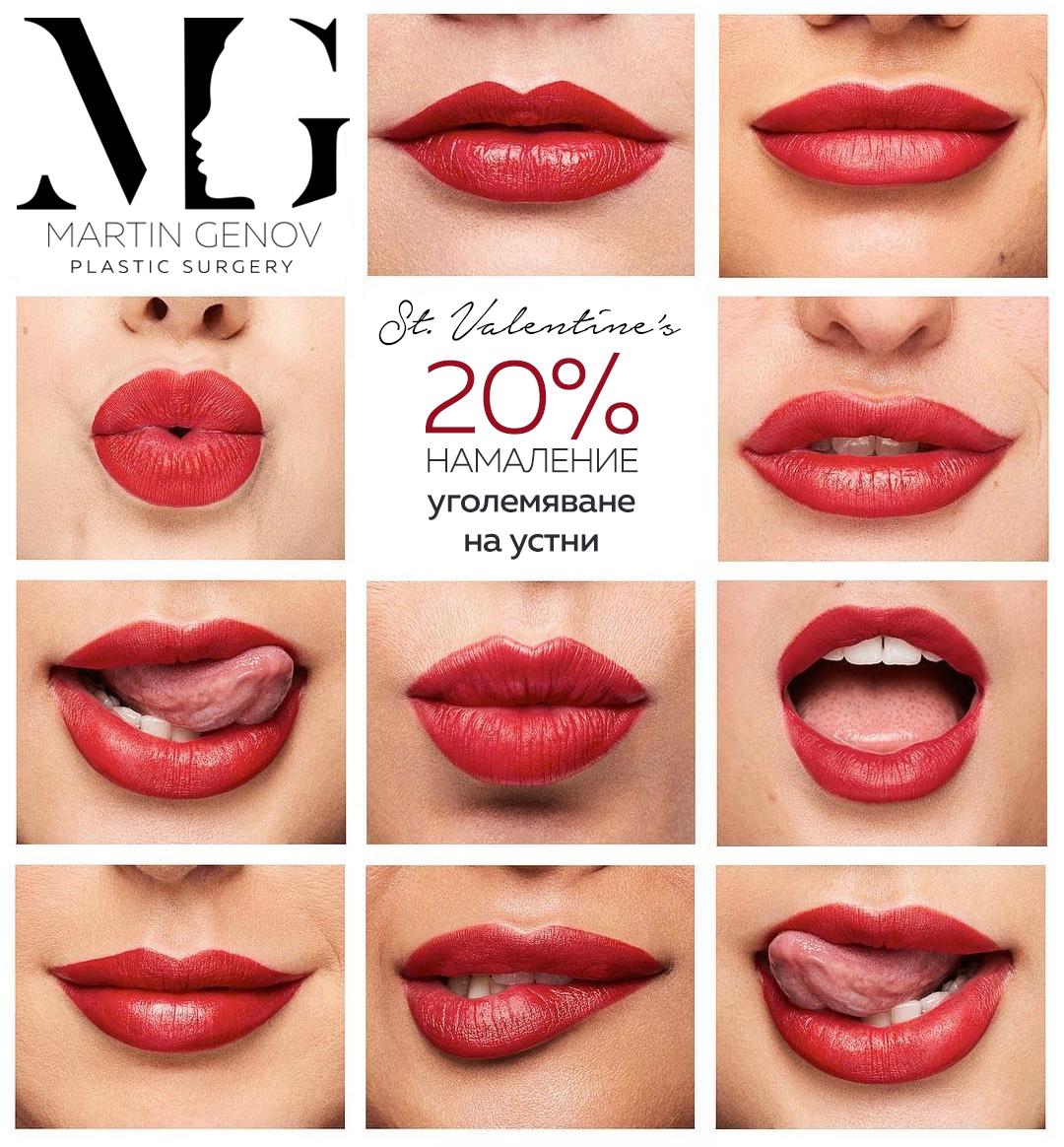 уголемяване на устни промоция
