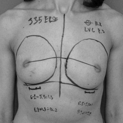 Първият истински математически метод за уголемяване на бюста